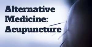 Alternative Medicine: Acupuncture